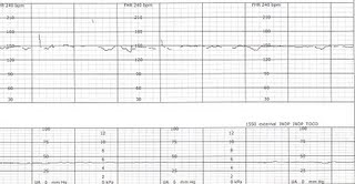 fetal heart rate monitoring guidelines